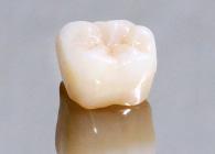 Prothetik und Implantatprothetik, Konservierende Zahnheilkunde